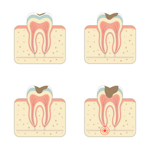 image showing how tooth decay will result in a root canal